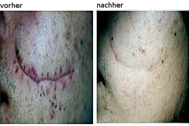 Laser zur Tattooentfernung